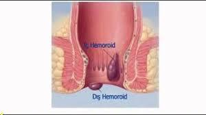 Hemoroid Lapası