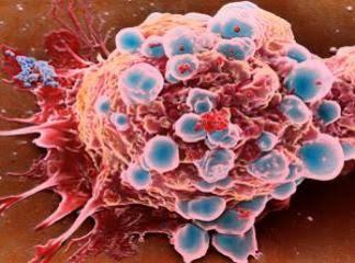 Kanserden Korunmak İçin Karışım