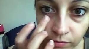 Göz Altı Torbalarını Gideren Maske