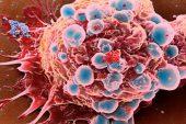 Kanserden Korunmaya Yardımcı Sirke